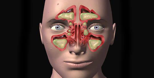 Come sbarazzarsi della sinusite in 20 secondisinusite