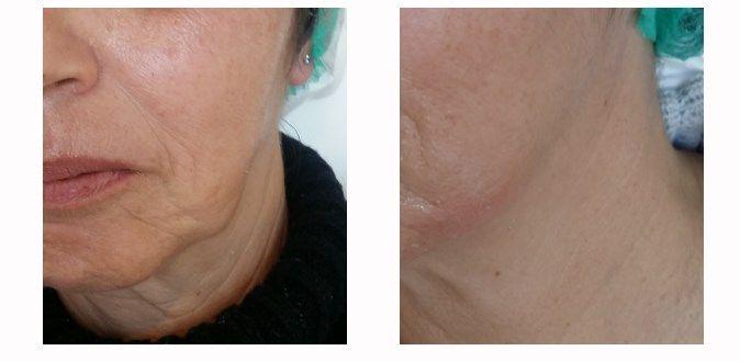 Botox GOLDEN LIFT PLUS (Lifting προσώπου με νήματα COG) πριν & μετά