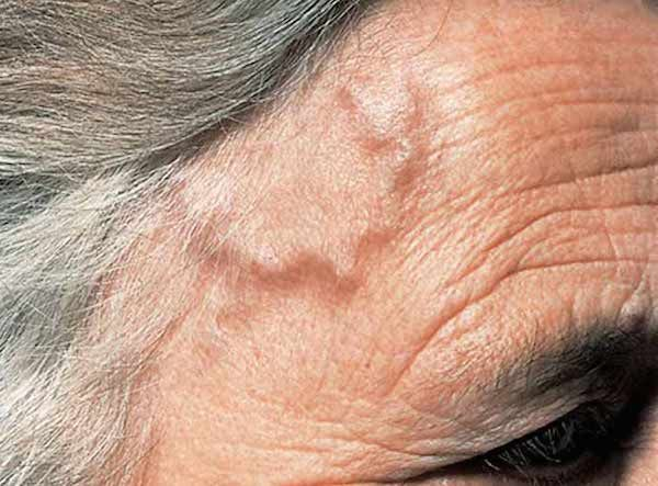 Giant Cell Arteritis: Difficult to diagnose, eminently treatable: Giant Cell Arteritis (GCA) is the most common form of vasculitis that…