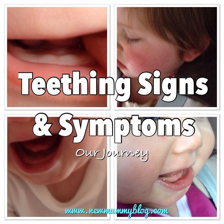 Teething signs and symptoms - New Mummy Blog