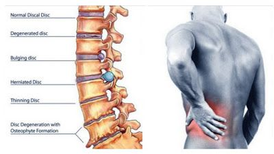 BEST TIPS FOR HEALTHY AND DISEASES: Chronic Back Pain You Need to Know