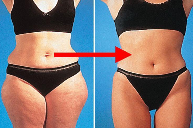 Mindenki csinos szeretne lenni, de sokan nem tudják, hogy ehhez nincs szükség diétára és fárasztó edzésekre. Ezzel az elixírrel csökkentheted az étvágyad és beindíthatod az[...]