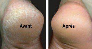 Astuce naturelle pour traiter les pieds secs et fendillés