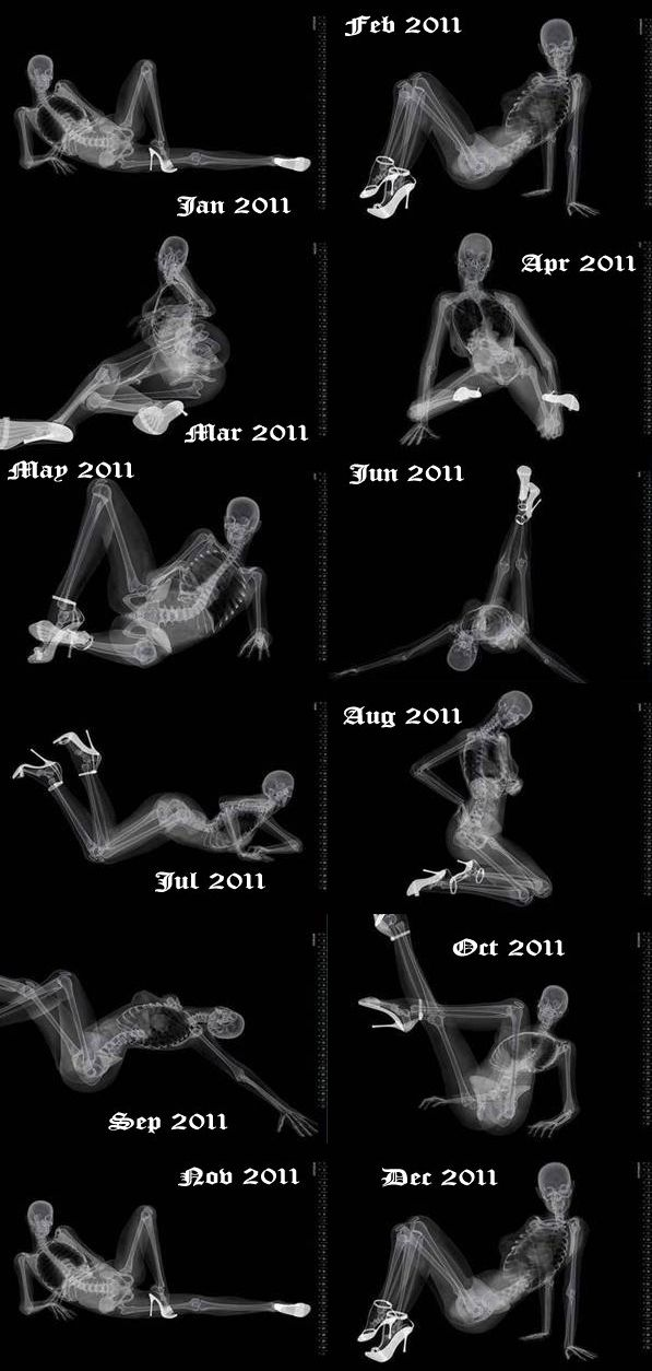 Mrs X-Ray of 2011