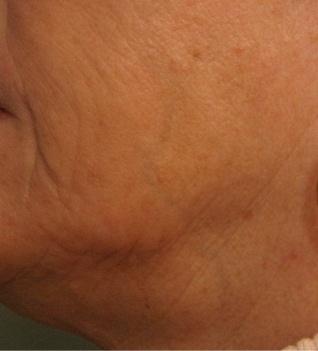 Laserbehandeling met de E-matrix : Prachtige verstrakking van de huid