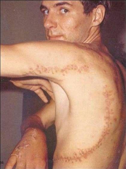 Some of the most horrifying shark attacks ever - Rodney Fox, 1963