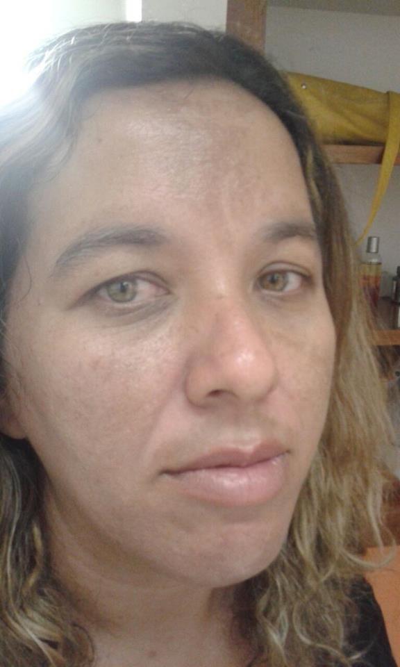 Karina Padilha  Consultoria em Cosméticos: Tratamento Racco para Mancha no Rosto Primeira Ses...