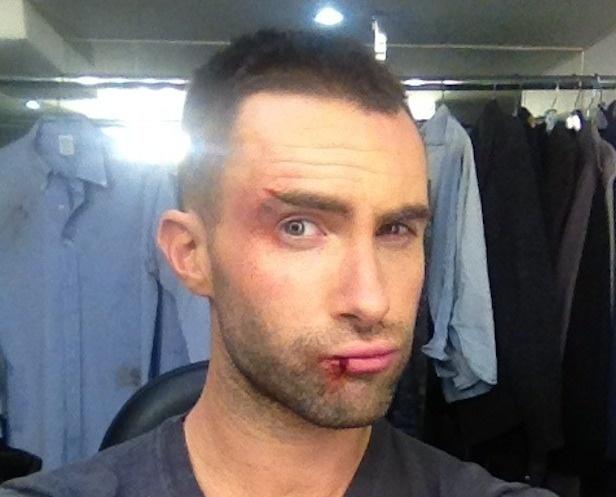 Adam Levine Posts Bloody Pics, Twitter Fans Swoon