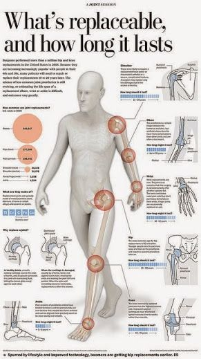 338 Best Ankylosing Spondylitis Images On Pinterest
