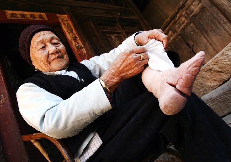 Zhou Guizhen who is 86 years old, shows one of her bound feet where the bones in the four small toes were broken and forced underneath the foot over a period of time in China's southern Yunnan Province. Photo: AFP