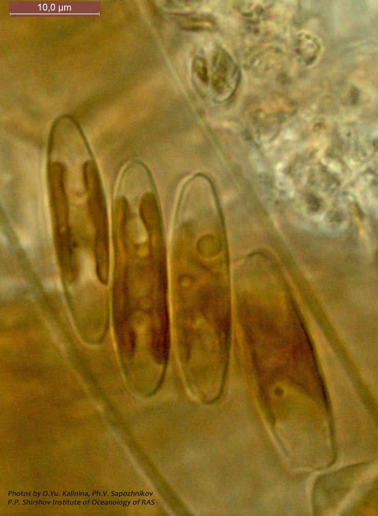 """Клетки диатомей, принадлежащих к одному из видов рода Parlibellus. Эти диатомеи строят для обитания трубки из полимерных полисахаридов. Такие трубки, порой очень густо """"нашпигованные"""" живыми клетками, они формируют на поверхности плавучих предметов, скитающихся под самой поверхностью Моря, или же на скалах мелководной зоны, а также на макрофитных водорослях."""