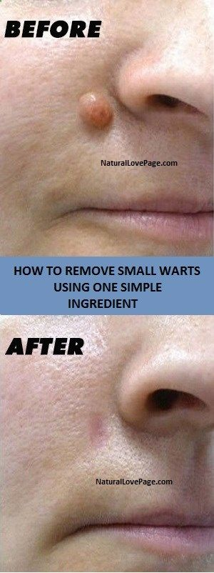 HOW TO REMOVE SMALL WARTS USING ONE SIMPLE INGREDIENT