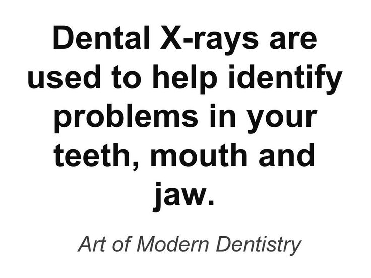 Chicago Dental X-Rays