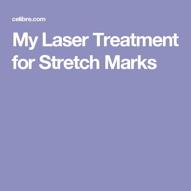 My Laser Treatment for Stretch Marks