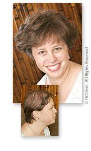Hair Transplant UK | Hair Transplant London | FUE hair transplant | Hair Transplant Clinic | Female hair loss treatments | http://www.ukhairtransplantclinics.co.uk