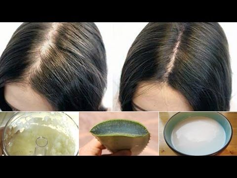 Hair Growth - How to Make Hair Grow in Bald Spots - Treat Bald Spots - YouTube