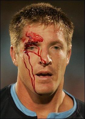 Brendan Cannon Nearly blinded  Bakkies Botha