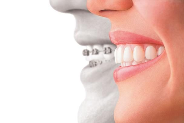 Read important tits bits for teeth alignment treatment and full process which not only brings the teeth to proper alignment, but also offers a good looking.