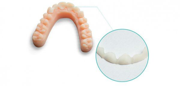 Gouttières Smilers Fix de Biotech Dental, l'orthodontie