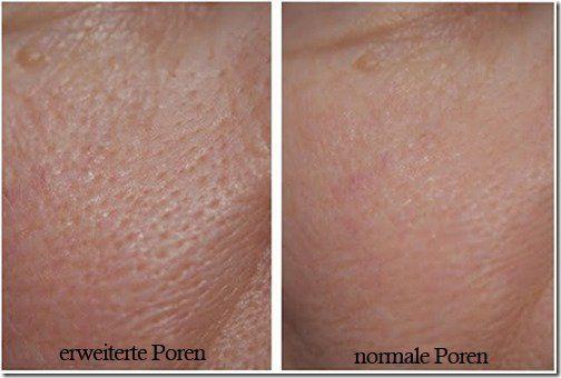 3 Masken gegen erweiterte Poren – Anita Schlüchter
