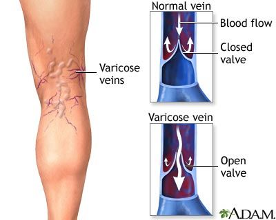 Varicose Veins: abnormal collection of blood in veins that cause swollen, twisted, sometimes painful veins.  The valves that keep blood moving toward the heart in veins do not function properly so blood pools in the vein, causing enlargement.  They are caused by defective valves, pregnancy, and standing for long periods of time.  Varicose veins can be treated with vein stripping - a surgery which removes the vein.  Other noninvasive treatments include laser ablation and sclerotherapy.