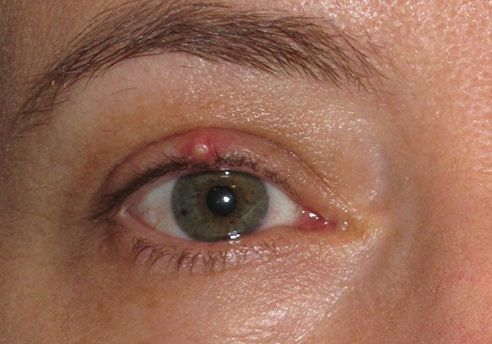 STYES: CAUSES AND REMEDIES