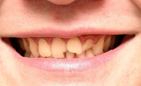 (Zentrum der Gesundheit) - Studien beschreiben nun die Auswirkungen von Bisphenol-A auf die Zahngesundheit. Die Toxizität des Weichmachers BPA (Bisphenol-A) ist mittlerweile vielen Menschen hinlänglich bekannt. Da er in Plastikwasserflaschen ebenso enthalten ist wie in Schnullern, Tetrapacks, Konservendosen, Plastikfolien und -geschirr, Kunststoffbehältern sowie in unzähligen weiteren Alltagsgegenständen, können wir uns dieser hormonartig wirkenden Chemikalie heute fast nicht mehr entziehen…