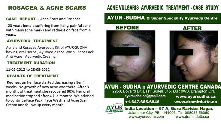 Skin Treatment Centre in Canada. Best Ayurvedic treatments in Brampton, GTA.