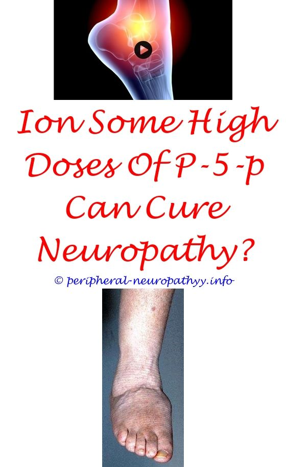 icd 10 alcohol induced peripheral neuropathy - pinched nerve neuropathy.radiation induced brachial plexus neuropathy peripherial neuropathy jacimiak louisville co va compensation for neuropathy 9769402331