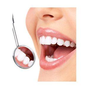 woman-smiling-white-teeth