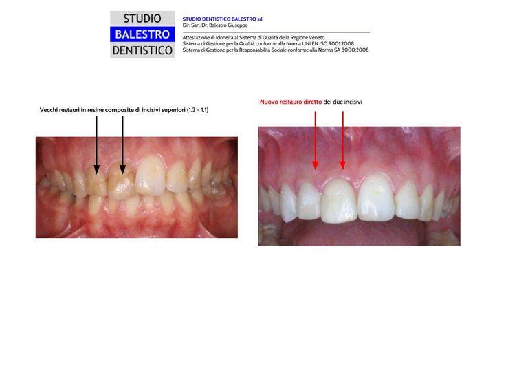 Casi clinici odontoiatrici Restauro diretto in composito di due incisivi http://www.studiodentisticobalestro.com/2011/08/ricostruzione-di-un-incisivo-in.html