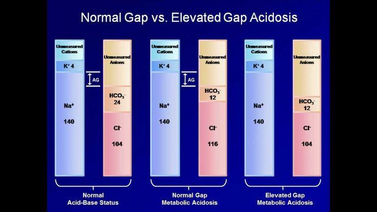 ABG Interpretation: The Anion Gap (Lesson 5)