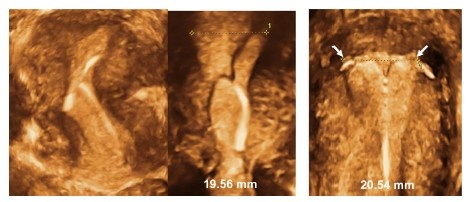 Figure 8 3-D ultrasonography: Abnormally located ParaGard intrauterine device (IUD) causing bleeding and pain (left) and middle (Mirena). Even if the IUD is apparently located in the correct position, the too-long transverse arm can cause painful contractions (right).