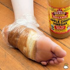 Ways to get rid of calousis and corns on your feet!! Remedy #5: Bread And Apple Cider Vinegar