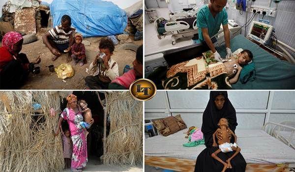 10 Potret Anak-Anak Kelaparan Akibat Perang di Yaman