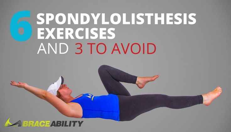 Five exercises to avoid with spondylolisthesis