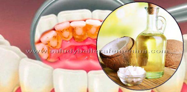 Expulsa las bacterias del mal aliento y elimina la placa con aceite de coco