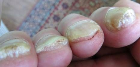 Thickened Toenails Might Be The Result Of Aging But An Injury To Toenail And Fungus Can Also Reason For Thick