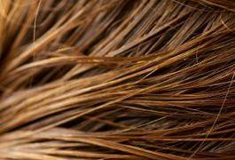 The human scalp contains about 100,000 hairs, growing at a rate of about half an inch per month. Most people typically shed between 50 to 100 hairs a day. Excessive hair loss can be a distressing condition affecting both men and women and can have numerous causes, from poor nutrition to disease. Kelp, a common food in Asian cultures, appears in...