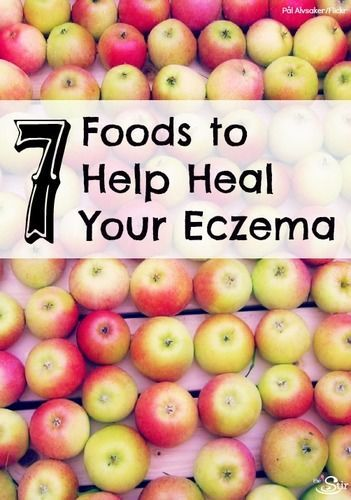 The Stir-7 Foods to Help Heal Eczema From the Inside Out