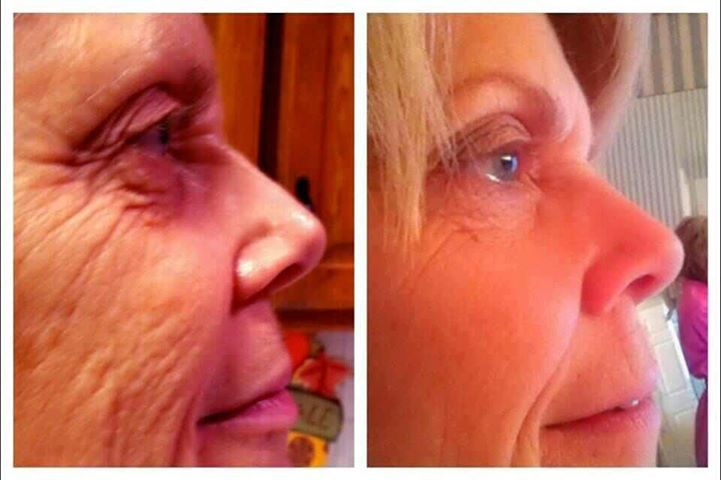 before  after shots of luminesce  this product is jeunesse