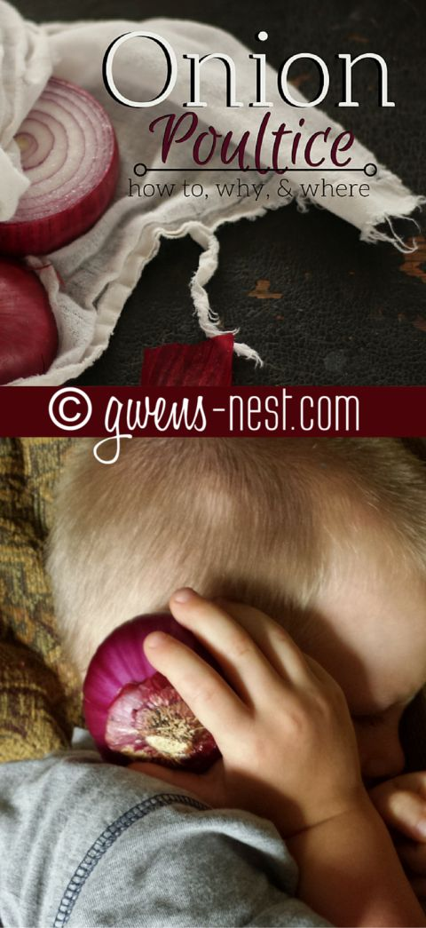 The onion poultice is a great ally in my home remedy arsenal. Find out the why, how, and the many uses for an onion poultice.