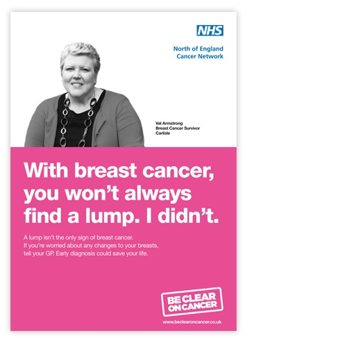 NHS Breast Cancer