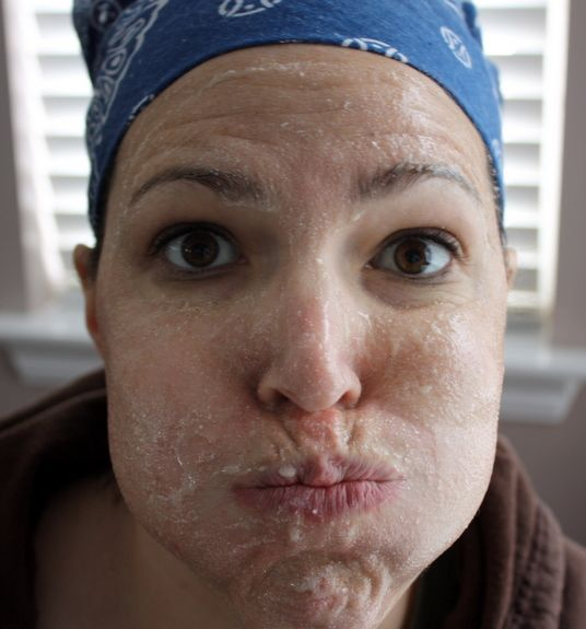 honey and aspirin facial scrub...fights acne...site has several more homemade beauty products and tips...