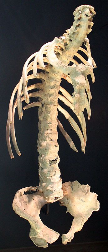 Ankylosing Spondylitis. I have this, not as bad as this person did, but more than enough to have it affect my life.