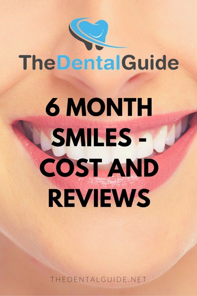 6 Month Smiles - Cost and Reviews - The Dental Guide