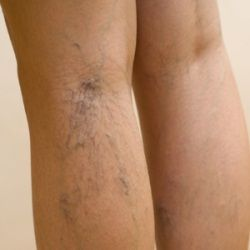 Home remedy for spider veins