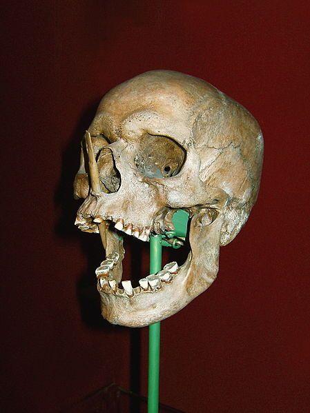 Porsmose Man, a neolithinc bog body found in 1946 near Næstved, Seeland, Denmark.