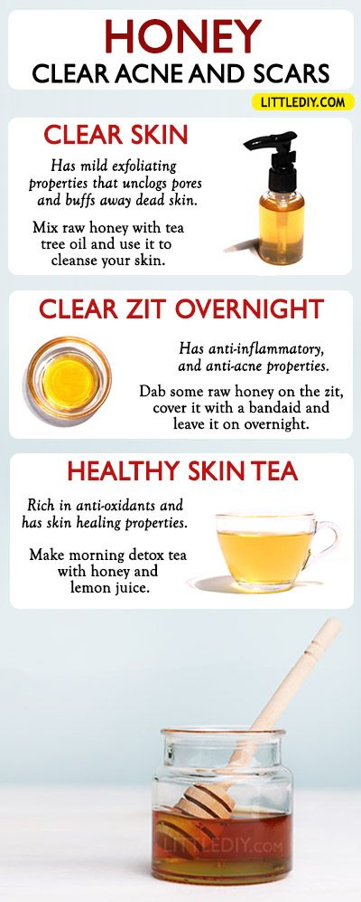 HOW TO USE HONEY TO TREAT ACNE AND ACNE SCARS