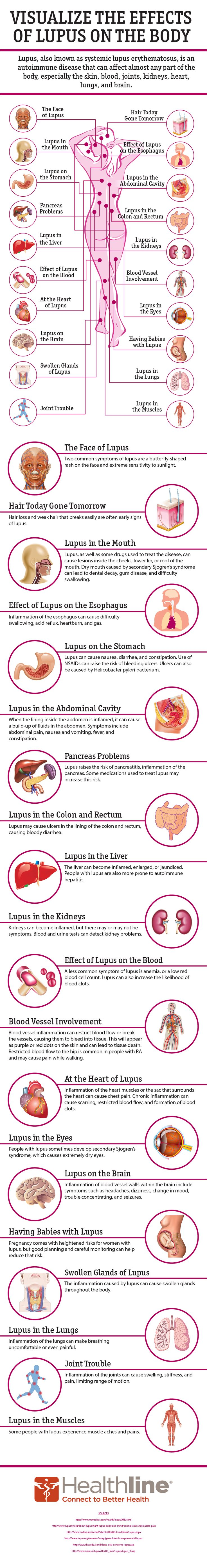 20 Ways #Lupus Affects Your Body • Healthline...i have all but the esophagus and hair issues
